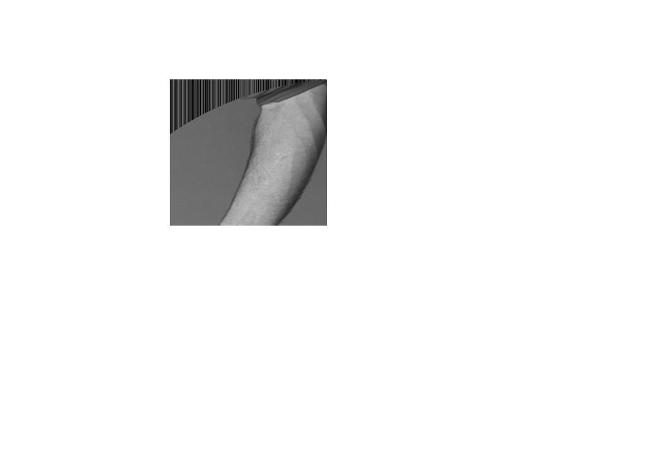 <p>Muslin Tree Screen</p>